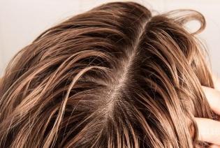 موهای چرب و نحوه ی مراقبت درست از آنها